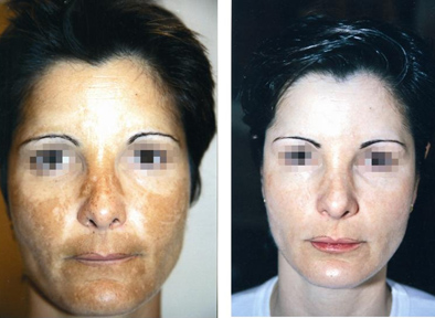 Melasma removal with cosmelan, pregnancy pigmentation removal on face