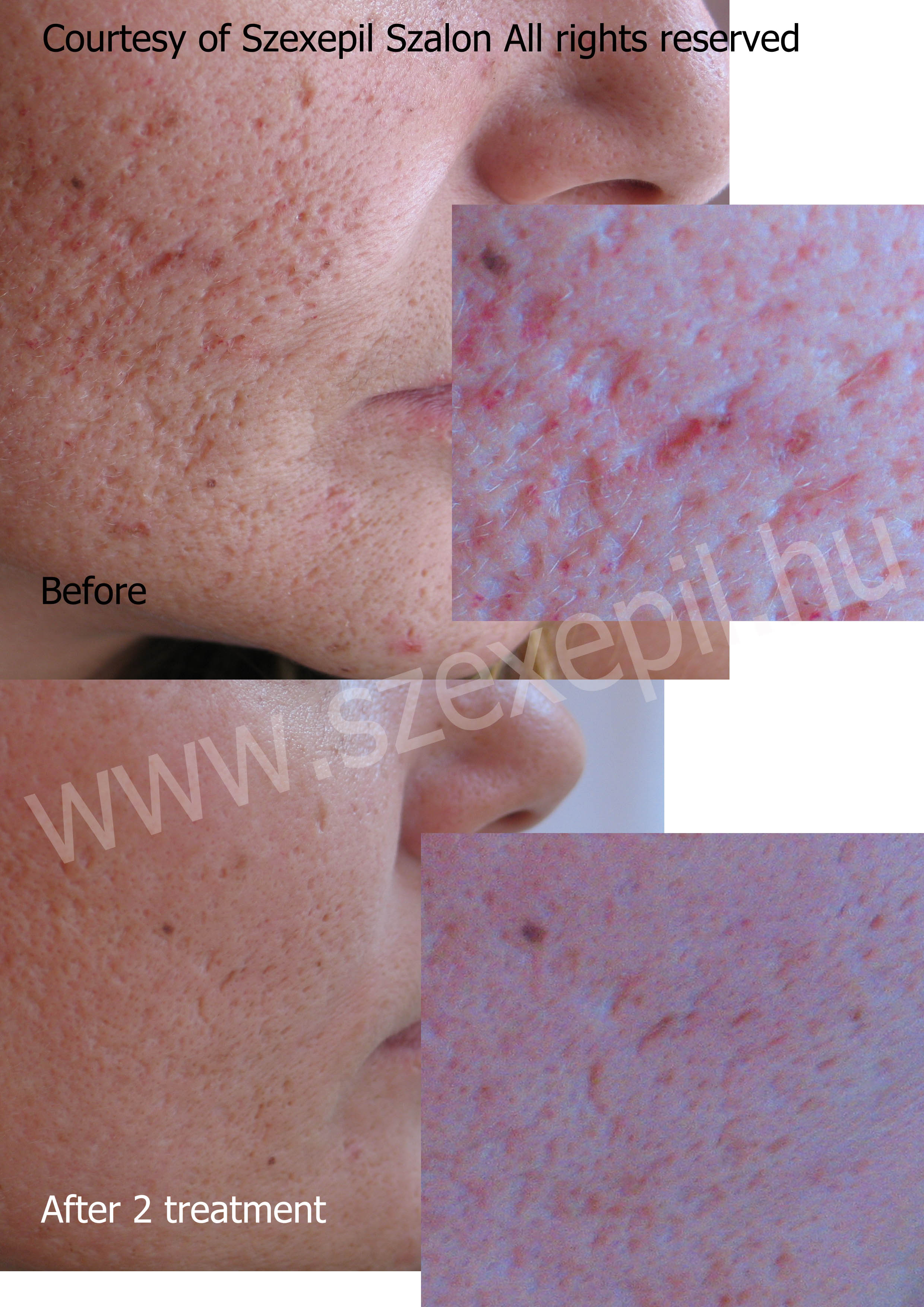 acne scar laser treatment before and after, laser scar revision