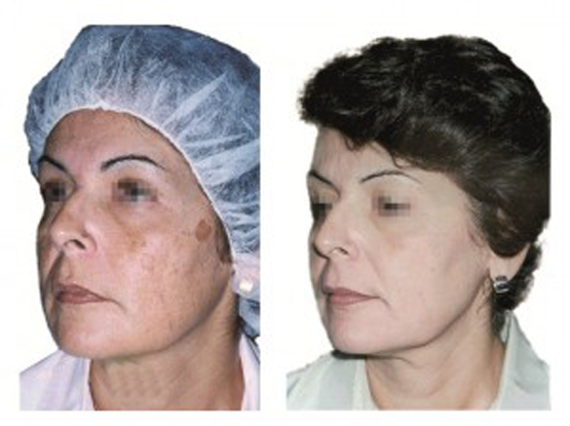 quick and easy pigment spot removal, quick and easy sundamage removal