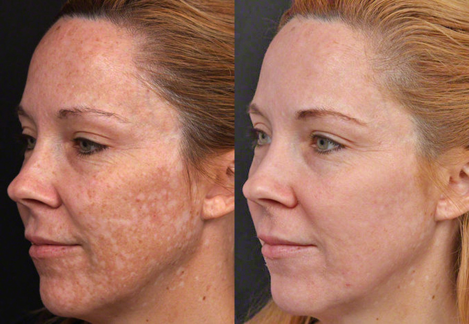 Cosmelan melasma removal treatment, sun damage treatment