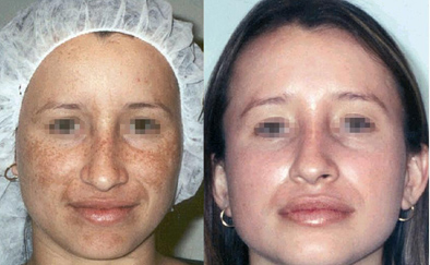 quick and easy melasma removal, affordable pregnancy mark pigmentation removal