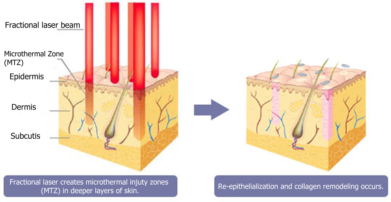 fractional laser treatment process