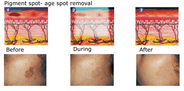 aftercare instructions for skin tag removal
