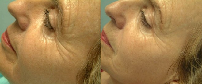 mesoeclat before after, mesoeclat treatment result