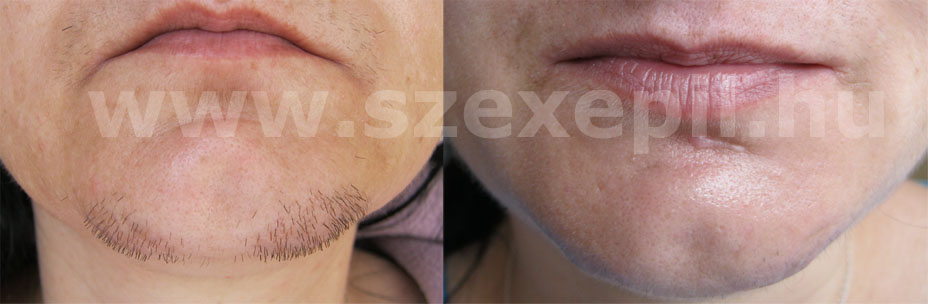 laser hair removal diode laser chin