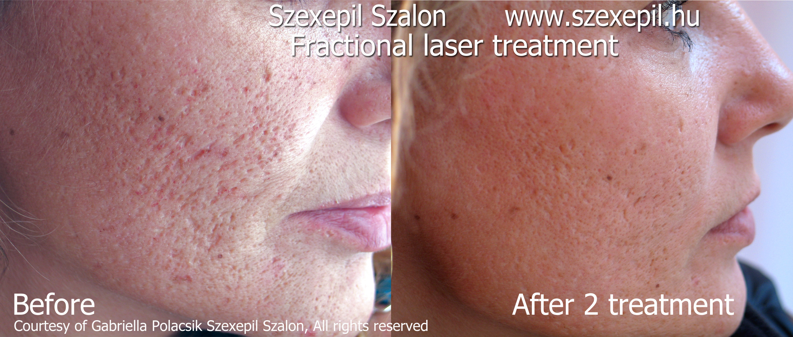 Frakcionlt lzerkezels frakcionlt lzeres brfeljts fractional laser before and after acne scar treatment fractional laser sciox Choice Image