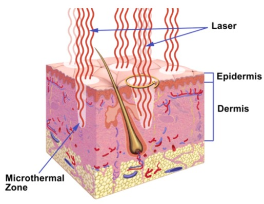 fractional laser how it works